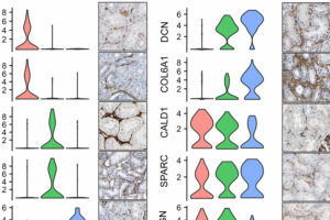 scRNA-seq is a Game Changer in Kidney Biopsy Cell Characterization